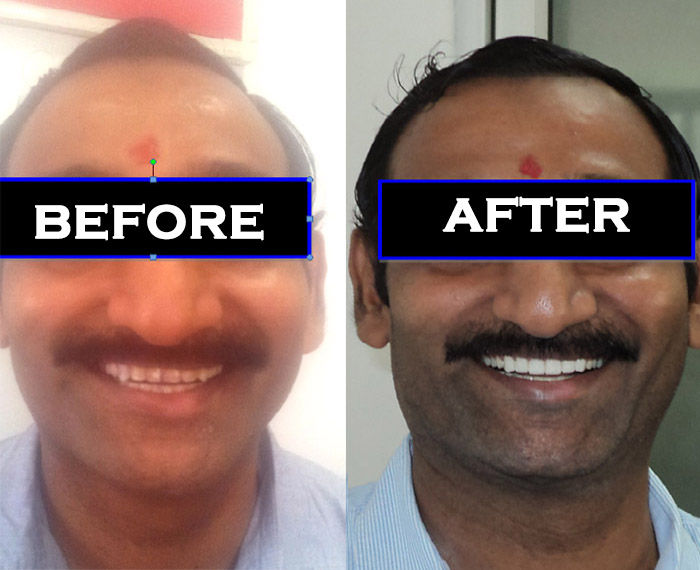 Best dentist in Kalkaji CR Park